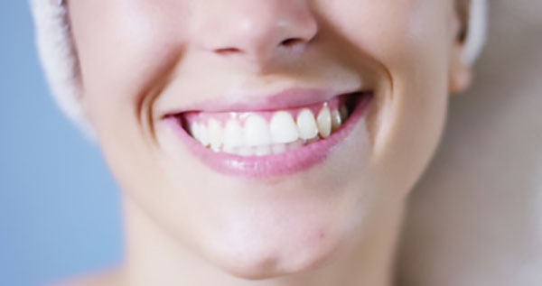 How Are Veneers Used As A Dental Restoration?